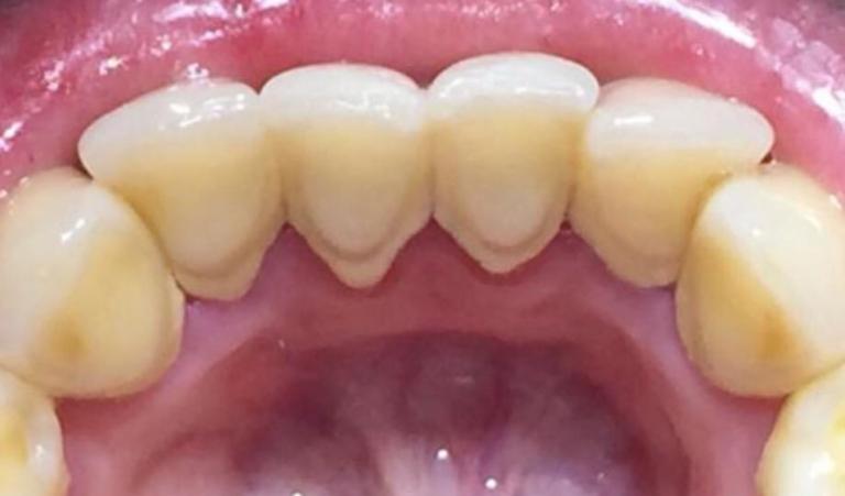dientes alineados